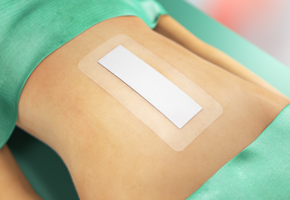 An abdomen in a postoperative environment with a Sorbact Surgical dressing applied on it