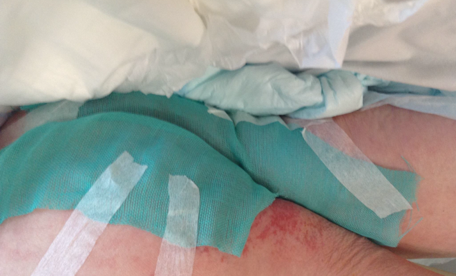 Sorbact Surgical Dressing applied on a patient with fungal infection in skin fold